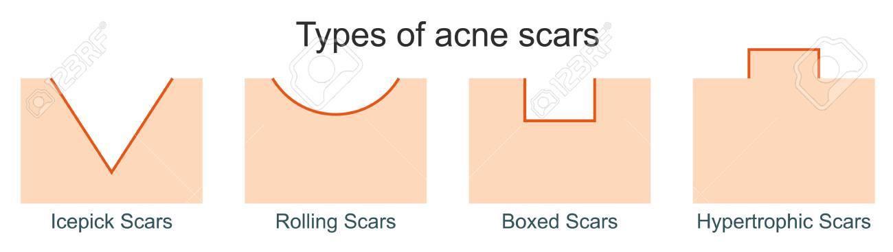 types de cicatrices