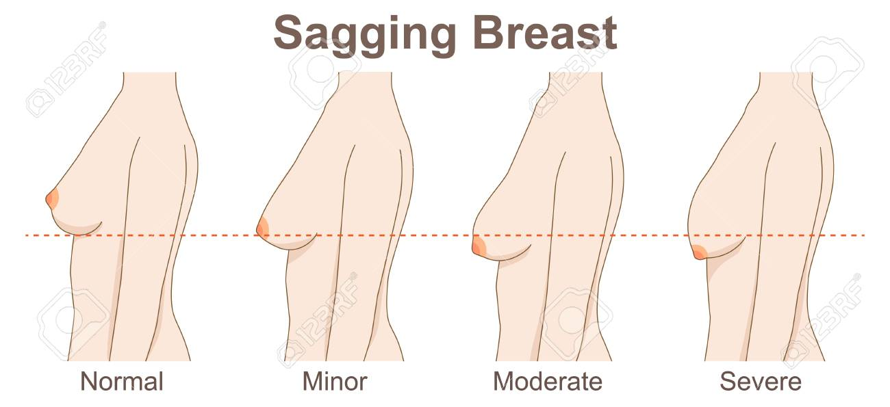 sagging - 104933900