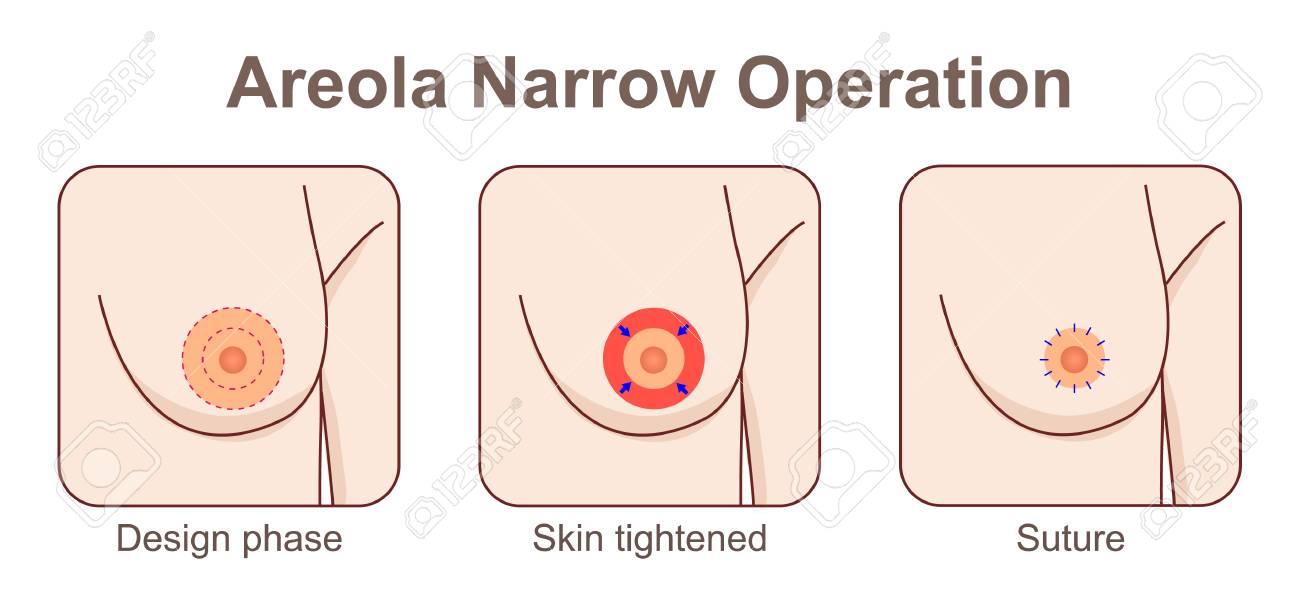 Areola narrow operation - 104933912