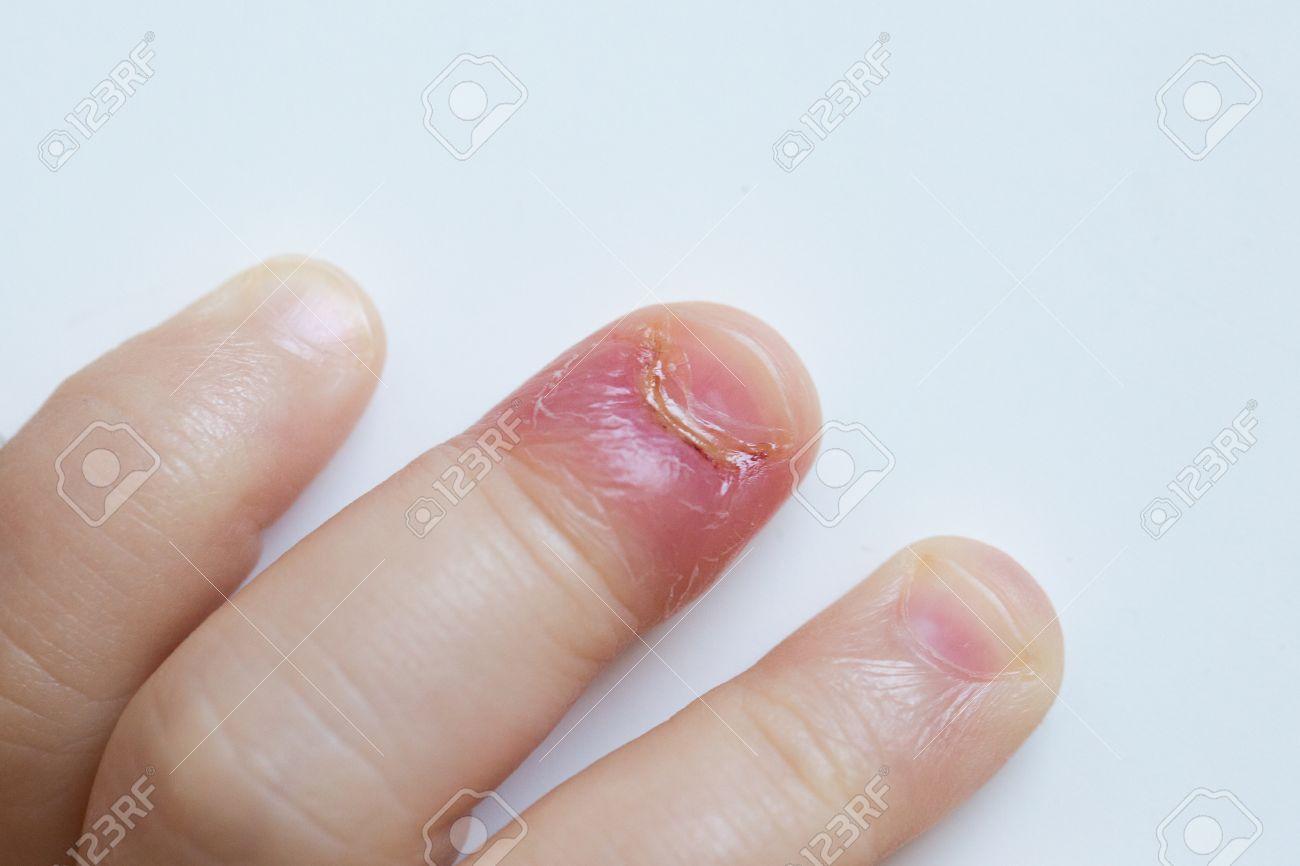 Paroniquia, Dedo Inflamado Con La Inflamación Cama Uña Debido A La ...