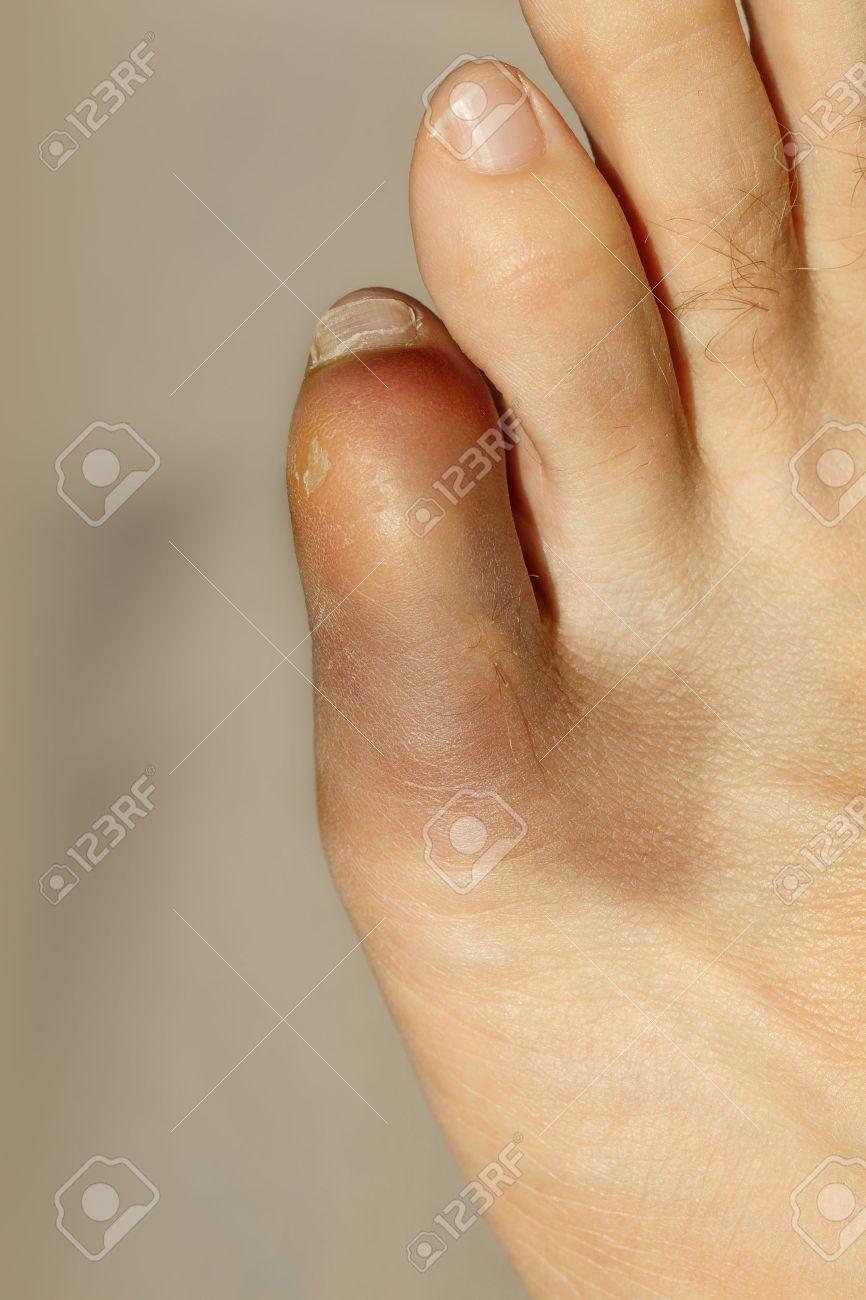 El menique del derecho dolor pie dedo en