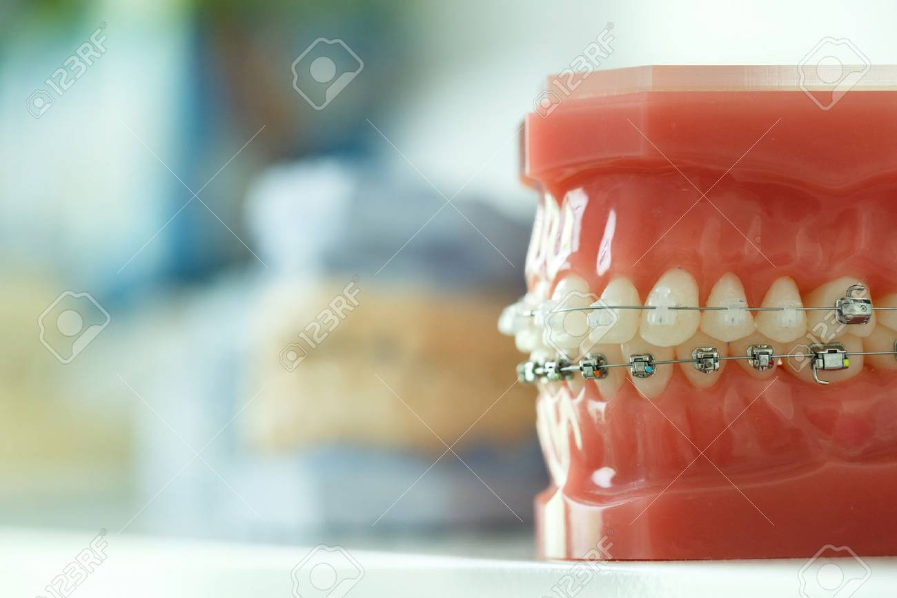Prime Model Of Human Jaw With Wire Braces Attached Dental And Orthodontic Wiring 101 Orsalhahutechinfo