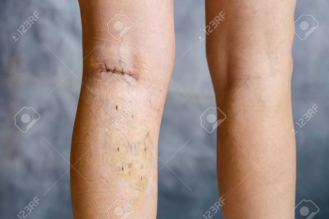 after varicose vein surgery